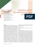 193 CIENCIA Tratamiento Celulitis Facial