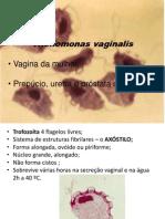 Tricomonas vaginalis