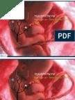Placenta Previa PDF