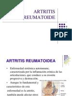 artritis-reumatoide-ANALIA