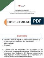34. hipoglicemia