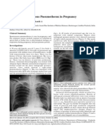 Recurrent Spontaneous Pneumothorax in Pregnancy