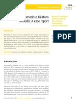 Pneumosinus Dilatans  Frontalis