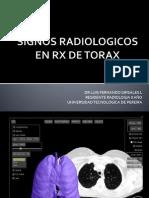 SIGNOS EN RADIOLOGIA DEL TORAX Px..pptx