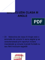 Malocluzia Clasa III Angle
