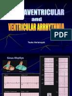 Arrythmia pada jantung