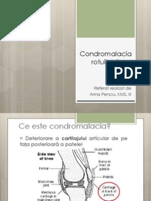 Dislocarea patelară. Tratament