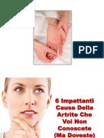 Artrite Reumatoide Giovanile, Artrite Alla Mano, Artrite Deformante Mani, Artrite Migrante