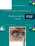 Fundoscopic_Examination.ppt