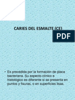 Caries Del Esmalte (Ce)