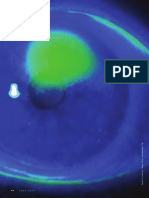 Confronting Corneal Ulcers
