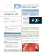 Pain Control and Carious Primary Teeth