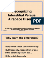 Interstitial vs Air Space