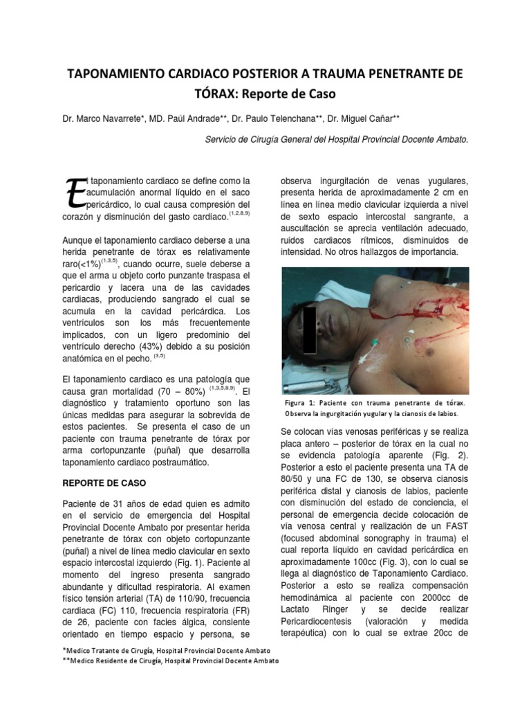 Taponamiento Cardiaco - Reporte de Caso