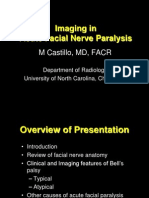 Facial Nerve Paralysis Presentation NXPowerLite1