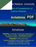 Arrythmias