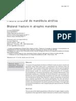 Fratura Bilateral Mandibula