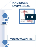 Candidiasis Vulvulo Vaginal