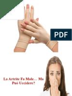 Artrite Sieronegativa, Artrite Artrosi Differenze, Artrite Delle Mani, Artrite Infettiva