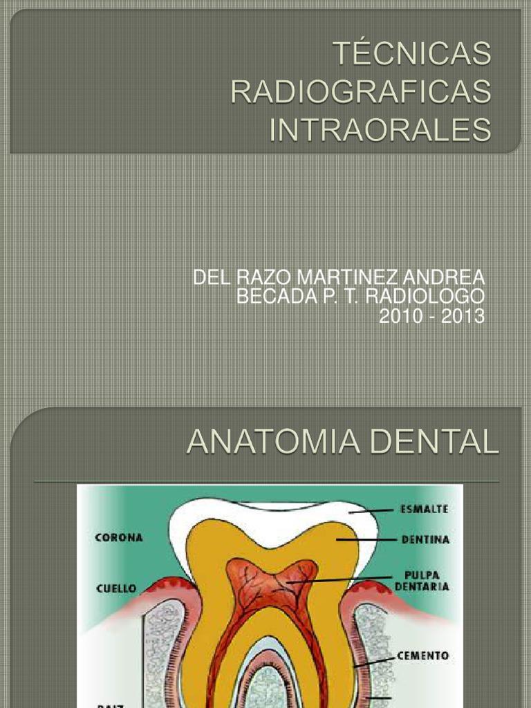 3-ESTUDIOS DENTALES (TECNICA PERIAPICAL Y OCLUSAL).pptx
