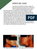 Adenoma Pleomofo