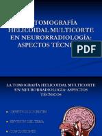 La Tomografa Helicoidal Multicorte en Neuro Definitivo