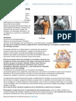 Fisioterapiasaludable.blogspot.com-ARTROSIS vs ARTRITIS