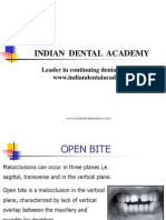 OPEN BITE 1 / orthodontic courses by Indian dental academy