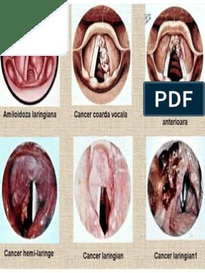 cancer faringo laringian)