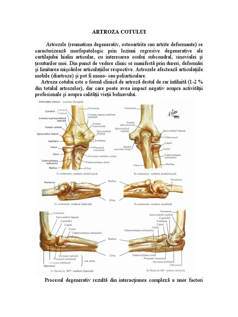 artroza cotului