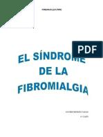 El Sindrome de La Fibromialgia