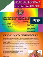 CASOS CLINICO NEUMOTÓRAX