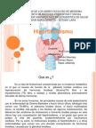 Hipertiroidismo Exposi!!!.pptx
