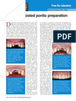 Pontic Preparation