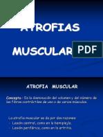 ATROFIAS MUSCULARES