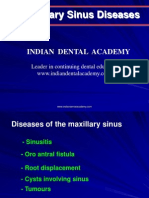 Maxillary sinus (NXPowerLite).ppt / orthodontic courses by Indian dental academy