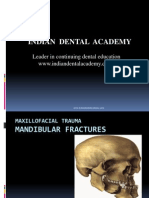 Maxillofacial Trauma-mandible # Final / orthodontic courses by Indian dental academy / orthodontic courses by Indian dental academy