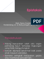 Epistaksis ppt