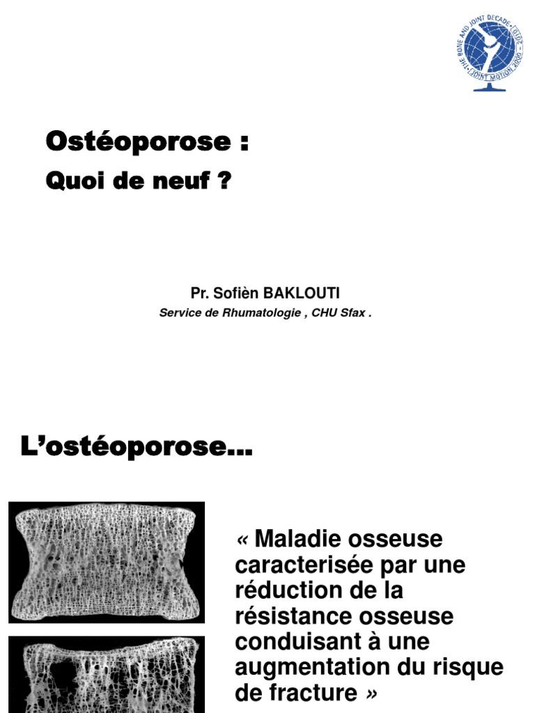 guide pratique de losteoporose