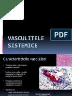 vasculite sistemice
