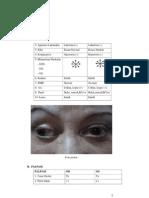 kasus glaukoma1