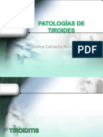TIROIDITIS-EUTIROIDEO-TUMORES