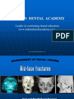 Mid Face Fracture / orthodontic courses by Indian dental academy