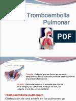 4 Tromboembolia Pulmonar