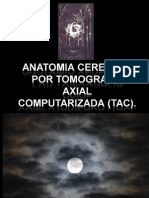 Anatomia Cerebral Por Tomografia Axial