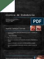 Caso Clinico Endodoncia2