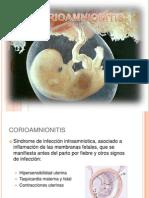 corioamneitis