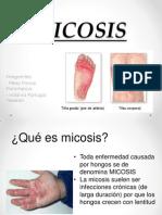 micosis 22.pptx