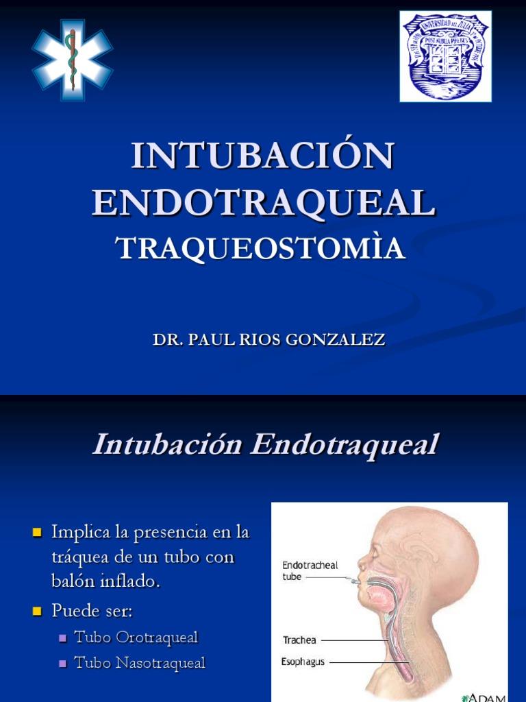 INTUBACION ENDOTRAQUEAL 2011