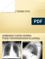 Interpretasi Thorax Foto
